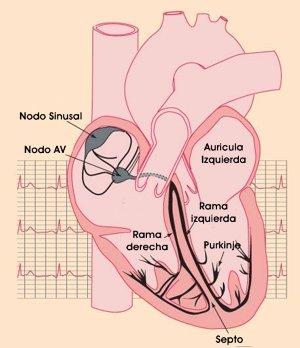 bloqueos_cardiacos