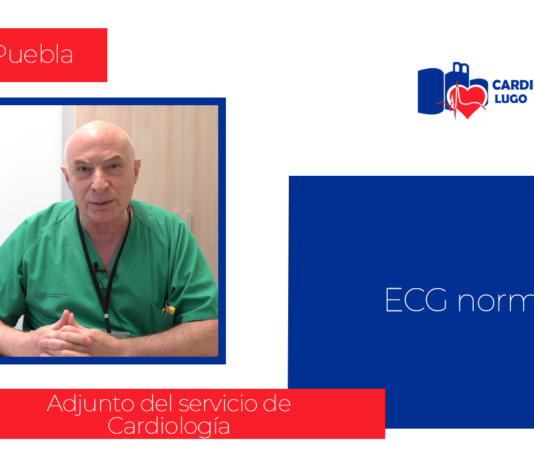 Victor Puebla Electrocardiograma AP